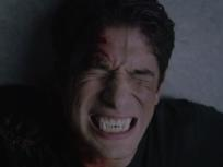 Teen Wolf Season 5 Episode 11