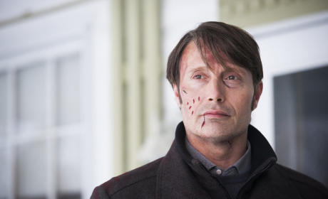 Hannibal Season 3 Episode 7 Review: Digestivo