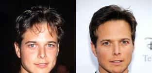 Scott Wolf - Then and Now - The Night Shift