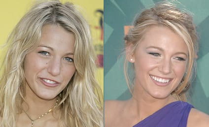 Blake Lively Nose Best
