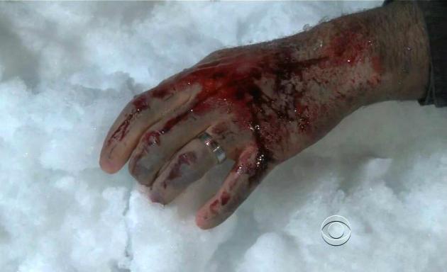 Bloody Finger