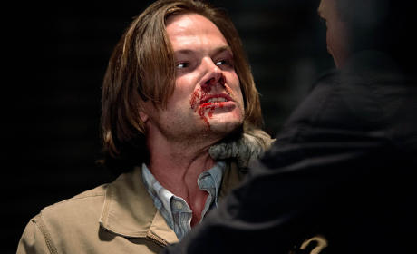 Always Bloody - Supernatural Season 10 Episode 2