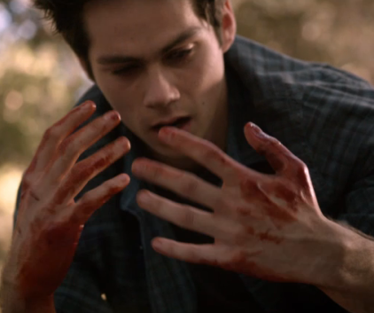 Watch Teen Wolf Season 3 Episode 19