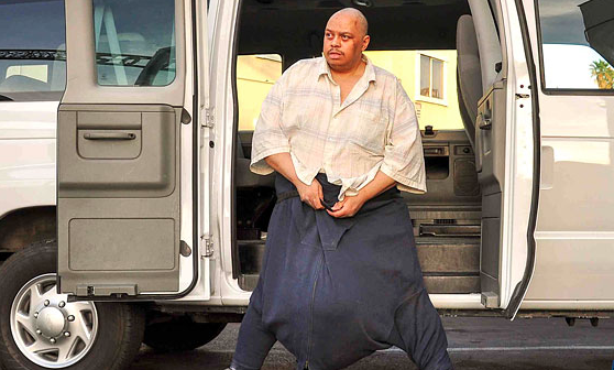 The Man with the 132-Pound Scrotum