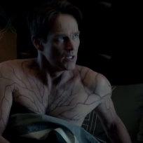 He's Infected! - True Blood