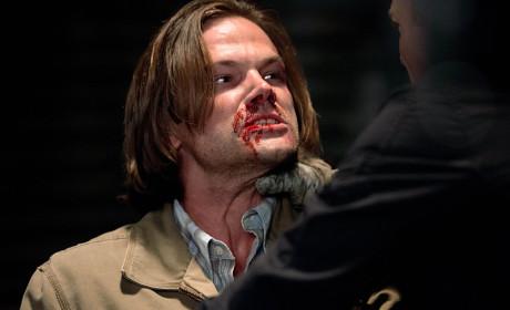 Always Bloody - Supernatural Season 10 Episode 2